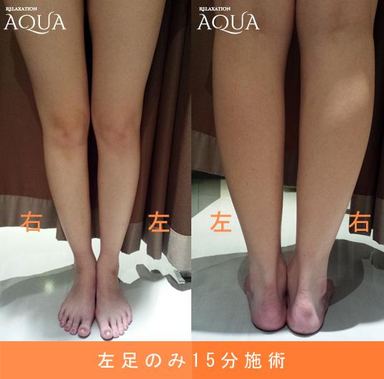 深層筋リンパマッサージ&ハイパーナイフで施術後の足
